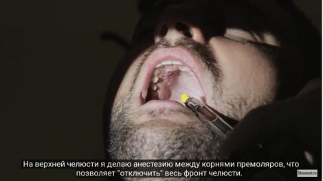 Как сделать отличный слепок зубов - Видеоответ