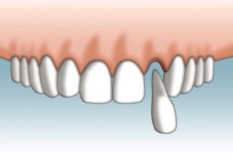 Что целесообразнее, имплантат под один зуб или реплантация - Систематический обзор исследований