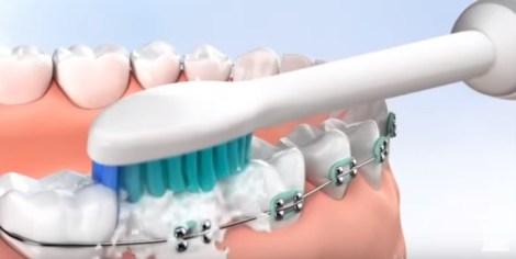 Полезны ли электрические зубные щётки при ортодонтическом лечении? Систематический обзор и мета-анализ исследований
