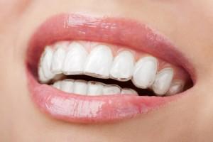 Wybielanie zębów