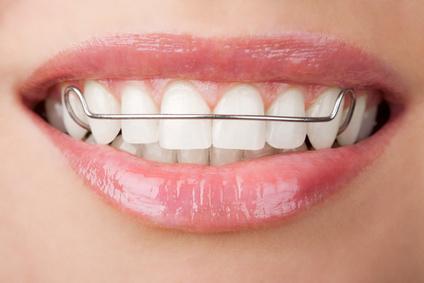 Ortodoncja Mokotów