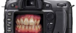 dentalna fotografija