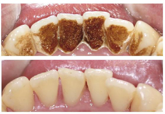 Izbeljivanje zuba cena uzice