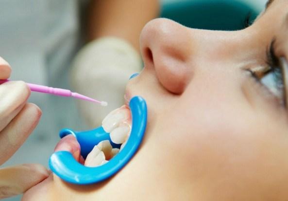 Fluorizacija zuba