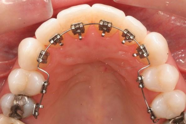 Ritejneri za zube