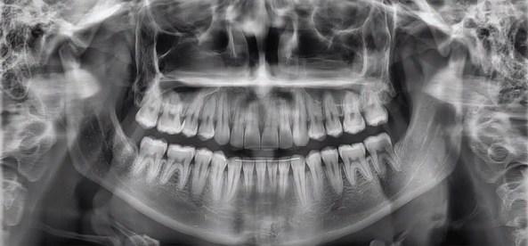 ortopan snimak