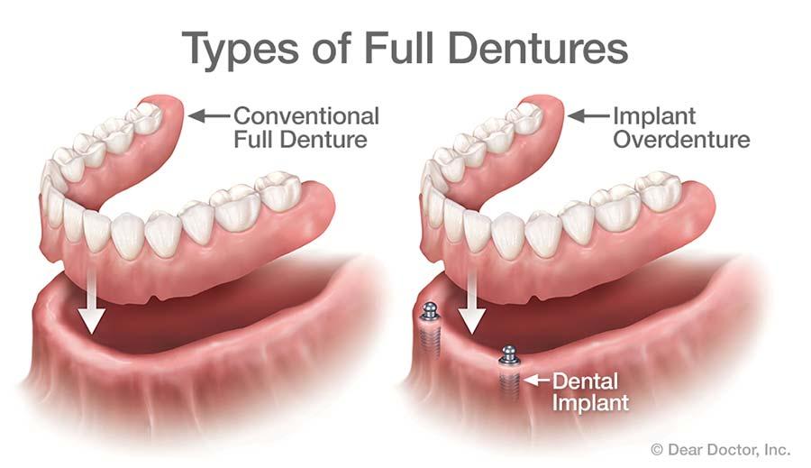 Menggunakan Gigi Palsu- Global Estetik Dental Care