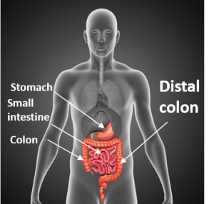 Food goes from the mouth to stomach to small intestines to colon before passing out of the body -- my type of Crohn's disease attacks the distal colon.