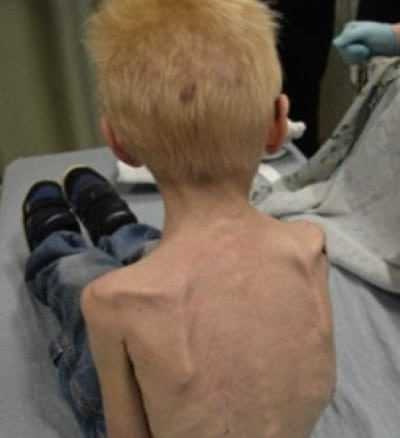 Malnourished boy, in grave condition, was found in unsanitary home with more than a dozen pets