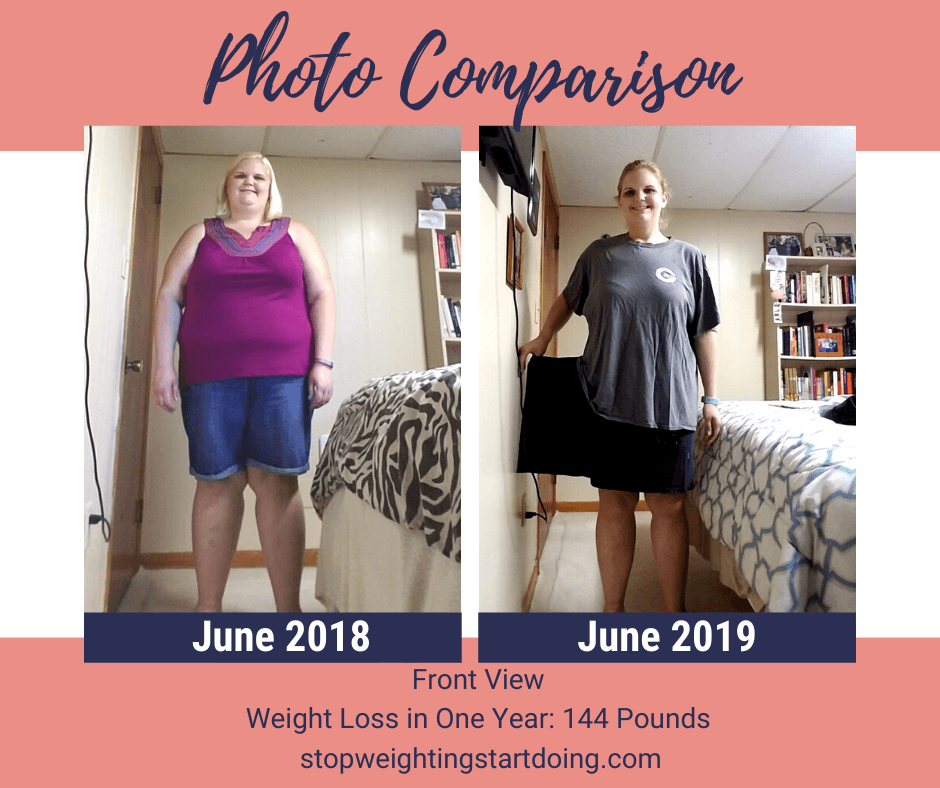 A comparison photo of Nicky Bicksler one year apart with a total weight loss of 144 pounds. Day of Gastric Sleeve Surgery: The Day That Will Absolutely Change Your Life | One Year Comparison Front