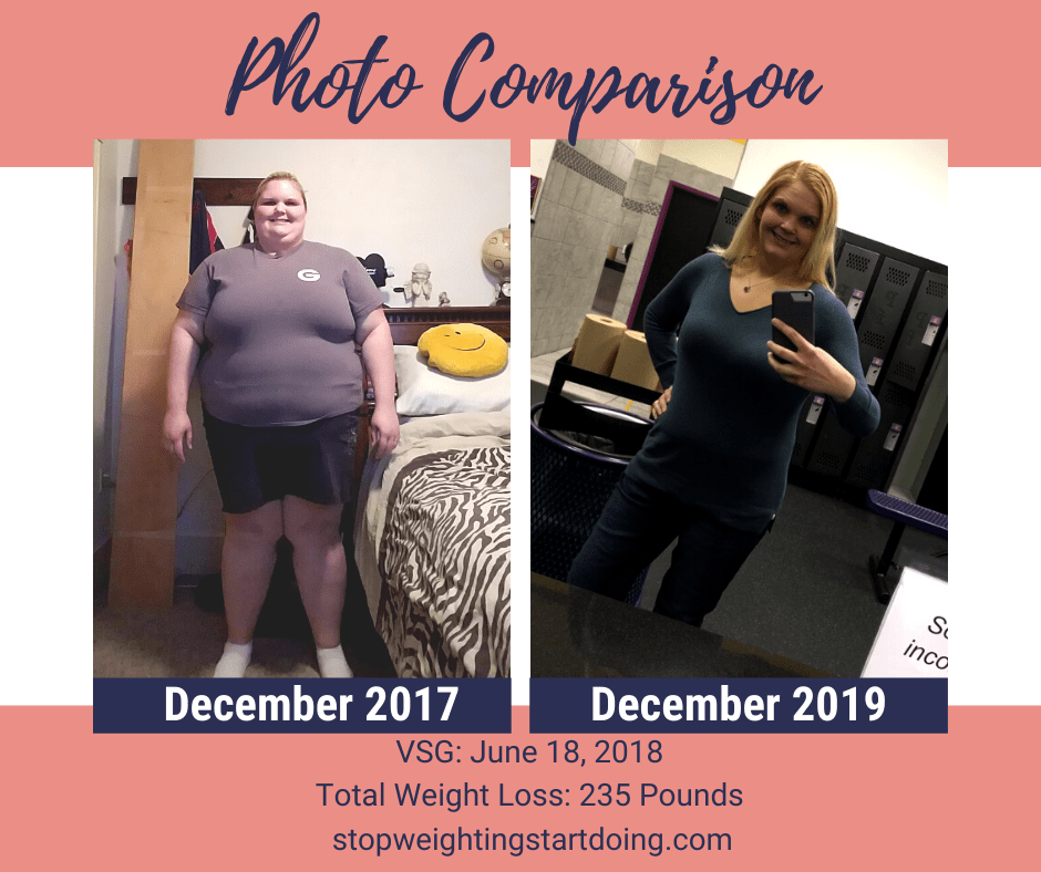 A Comparison Photo of Nicky Bicksler from her heaviest weight of 428 pounds to her lightest weight of 193 pounds. Day of Gastric Sleeve Surgery: The Day That Will Absolutely Change Your Life | Total Weight Loss Comparison
