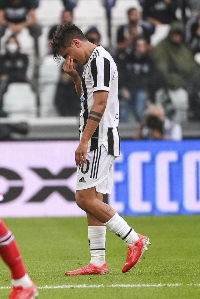 Juventus' Paulo Dybala leaves the pitch after suffering an injury during the Italian Serie A soccer match between Juventus and Sampdoria, in Turin, Italy, Sunday, Sept. 26, 2021. (Marco Alpozzi/LaPresse via AP)