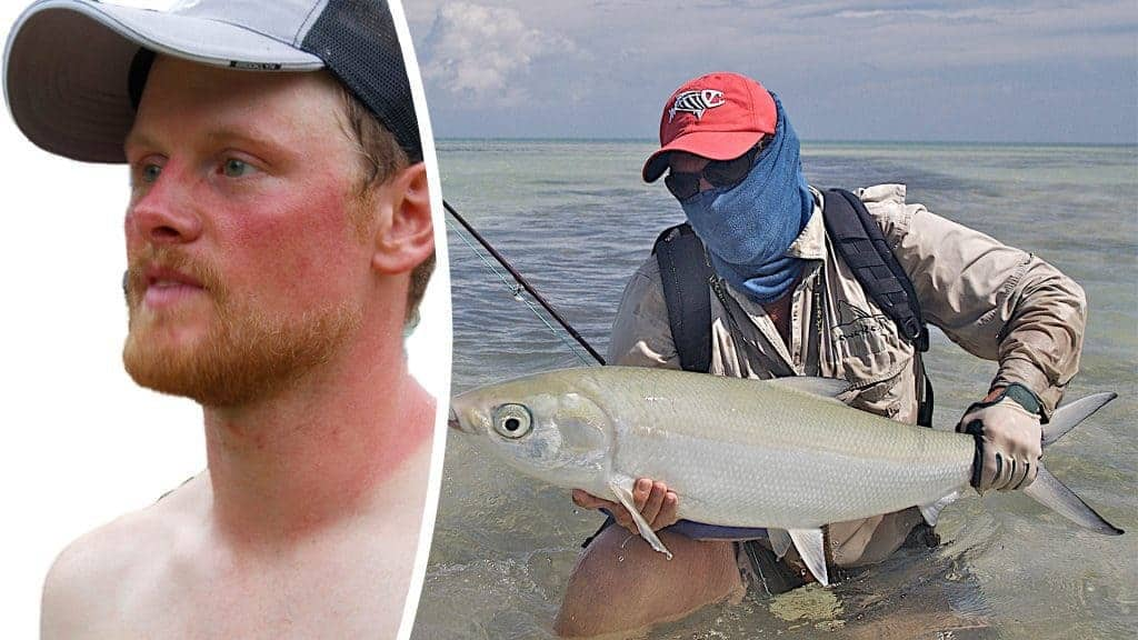 Photomontage: Left image Cutout of a man with a severely sunburned face. © Jonny Hunter, Attribution 2.0 Generic (CC BY 2.0), https://www.flickr.com/photos/jonnyhunter/3565036940/in/photostream/ Right image A flyfisher proudly displaying his catch. He is standing waist deep in salt water and he is wearing a High Uv Buff® as face mask. © Pat Ford