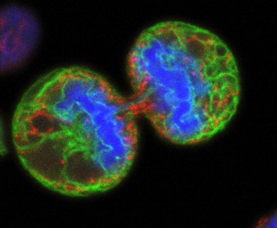 B0003294 Human melanoma cell dividing Credit: Paul J.Smith &Rachel Errington. Wellcome Images images@wellcome.ac.uk http://images.wellcome.ac.uk Human melanoma cell undergoing cell division. The chromosomes (blue) have separated and the two daughter cells have almost split apart - only a small bridge of cytoplasm remains. The green staining labels the endoplasmic reticulum and the red labels the mitochondria. The image was produced on a confocal microscope; the ER and mitochondria are from a single optical section but the chromosomes are a 3D reconstruction from a series of sections. Confocal micrograph Published:  -  Copyrighted work available under Creative Commons by-nc-nd 2.0 UK, see http://images.wellcome.ac.uk/indexplus/page/Prices.html