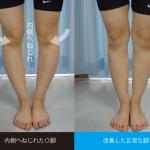 日本人に最も多い内ねじれO脚