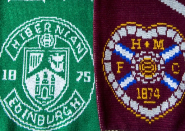 "Hibs contro Jambos: l'eterna rivalità ad Edimburgo, da Irvine Welsh alla ""Salt & Sauce Final"""