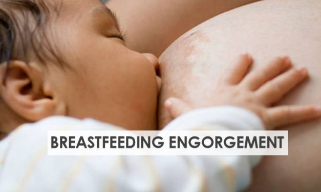 Breastfeeding Engorgement – How to Relieve Engorged Breasts