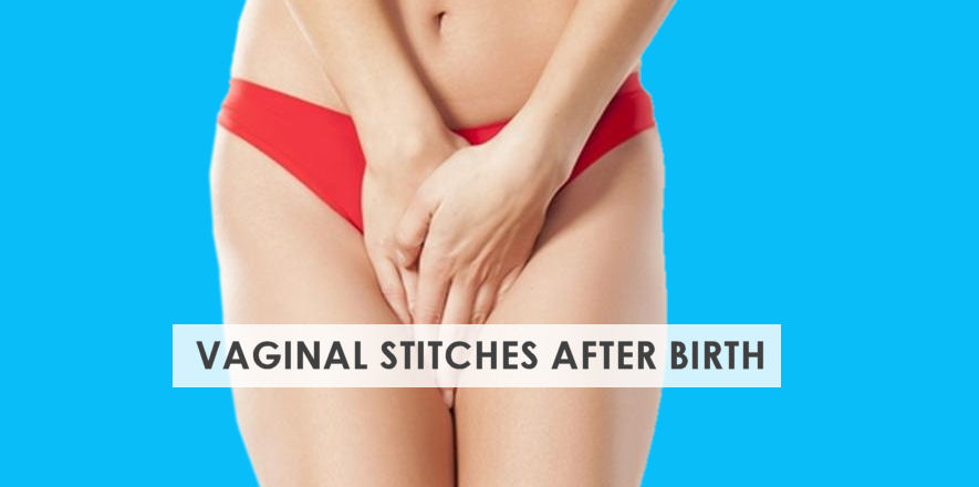 Vaginal Stitches after Birth – Ultimate Care Guide | Stork Mama