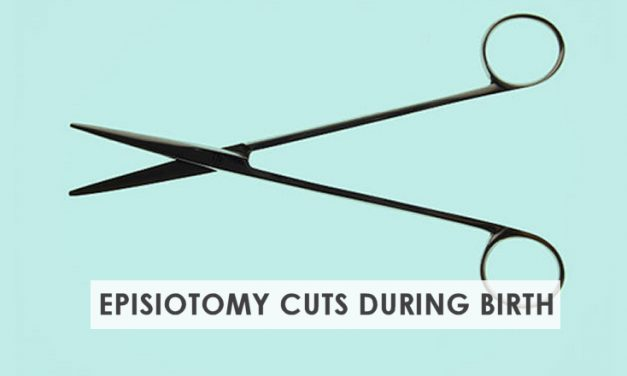 Episiotomy Cut – Make an Informed Choice During Delivery