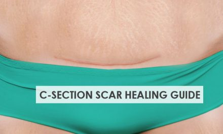 C-Section Scar Healing Care Guide