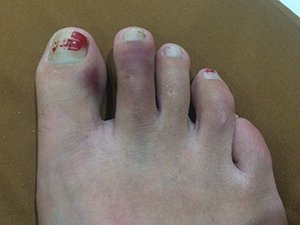 Lisa broken toe