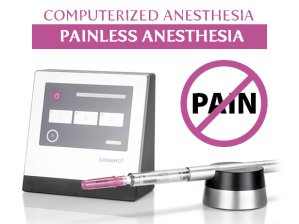 painless computerized anesthesia and numbing of the tooth
