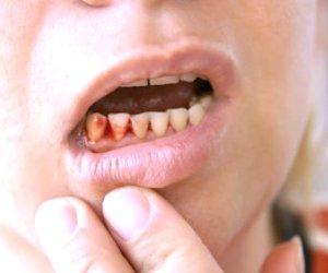 Bleeding Gums or Teeth