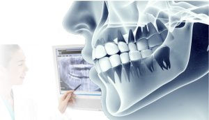 digital dentistry and radiographs and reduce radiation dosage