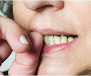 Prevention and management of habits that affect teeth and jaws