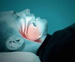Sleep Apnea (Apnoea) and Snoring