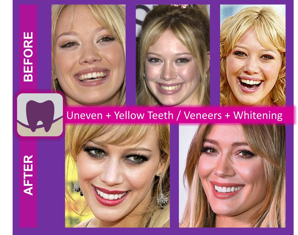Hillary Duff Before and After