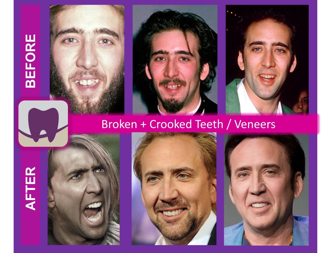 Nicolas Cage Before and After