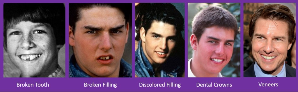 Tom Cruise Dental Timeline