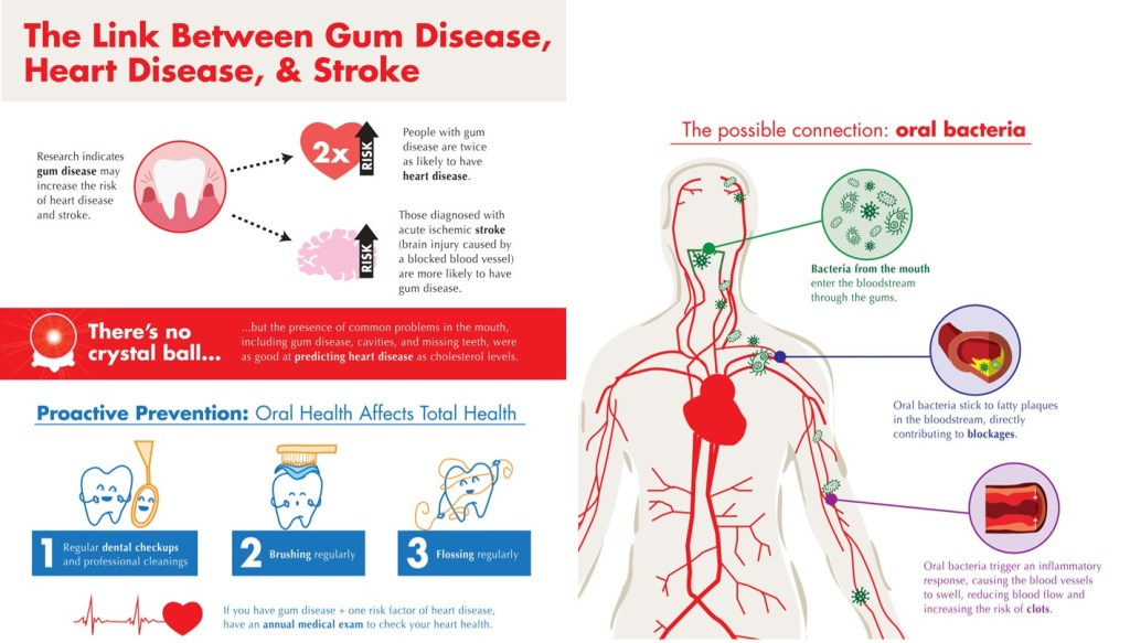 Heart Disease and Gum disease