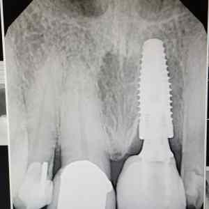Immediate Implant Restoration
