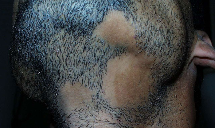 What Is Alopecia Barbae What Causes It And How To Cure It