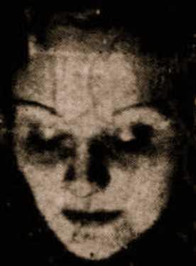 Η Genevieve, στο κεφάλι της οποίας εκδηλώνονταν το φαινόμενο του αυτοστιγματισμού