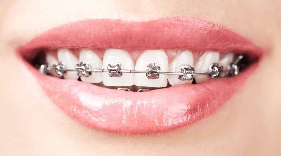 Orthodontics Las Vegas Sample