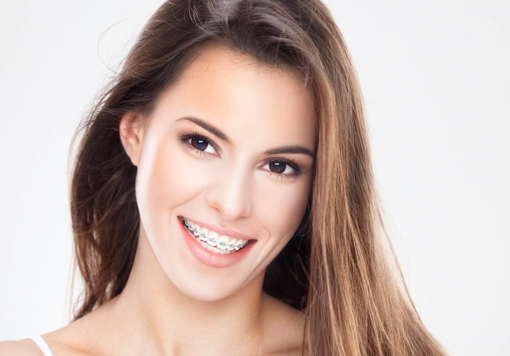 A woman wearing braces