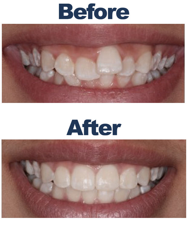 A before and after image of braces on a patient