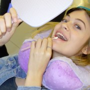 cynthia teeth whitening at archer dental in Toronto