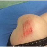 Pelham Does Damage to a Shoulder