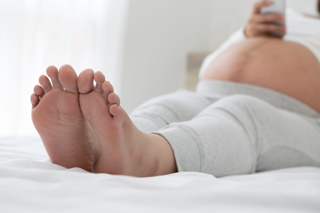 edema in pregnancy. Swollen feet and how to reduce it during pregnancy. Third trimester tips.