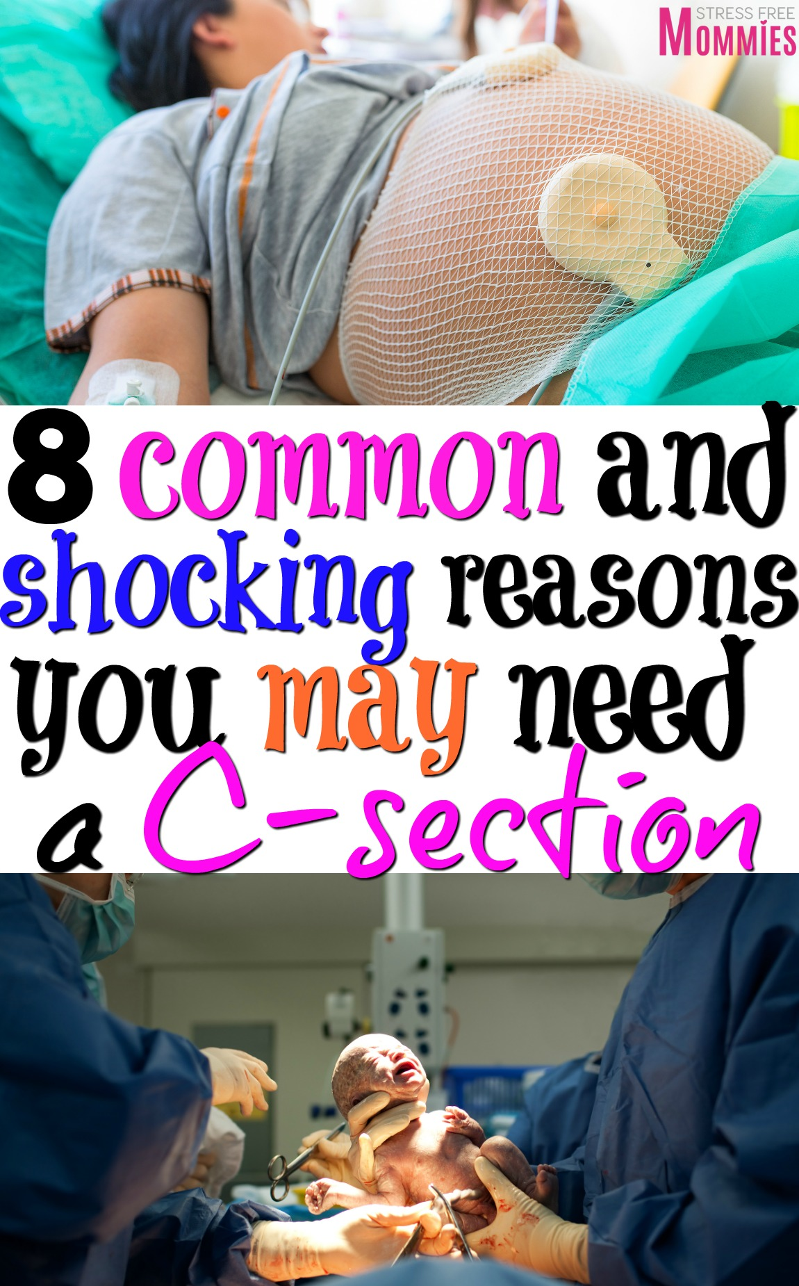 8 common and shocking reasons you may need a c-section - A helpful list of things that happen during labor that leads to a C-section. #pregnancy #C-section #labor #birth