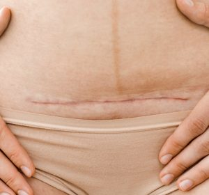 c-section incision care tips