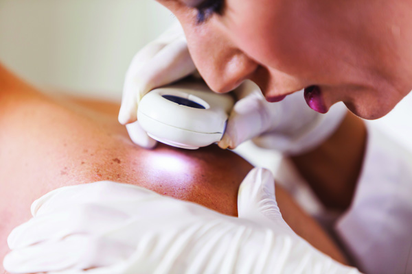 Female doctor checking for skin cancer