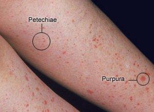 Что такое петехиальная сыпь и как она выглядит