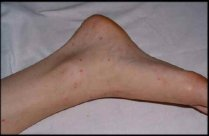 petechial-rash-causes