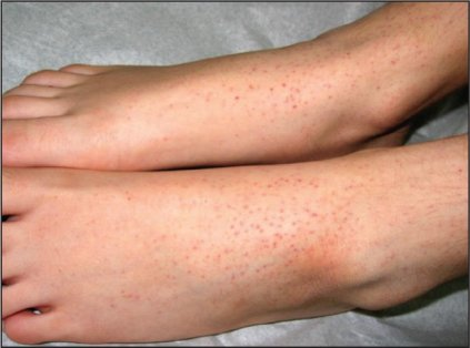 petechial-rash-differential-diagnosis