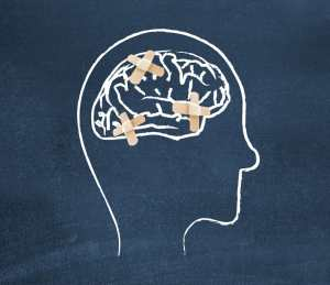 Mayo Clinic gives baseline concussion evaluations to Arizona student athletes